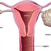 Xét nghiệm OncoSure - Ung thư buồng trứng