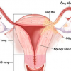 Xét nghiệm OncoSure - Ung thư nội mạc tử cung