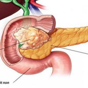 Xét nghiệm OncoSure - Ung thư tụy