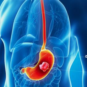 Xét nghiệm OncoSure - Ung thư dạ dày